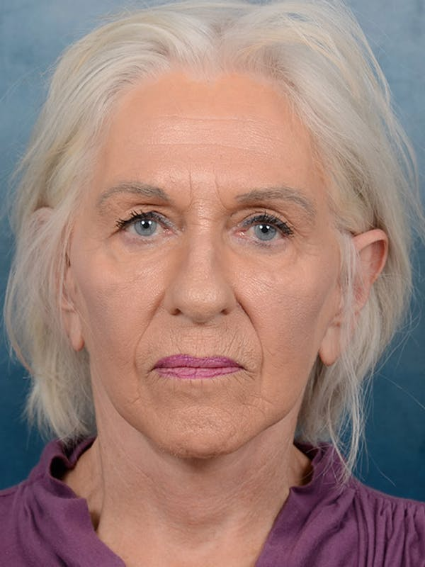 Facelift Gallery - Patient 5834122 - Image 4