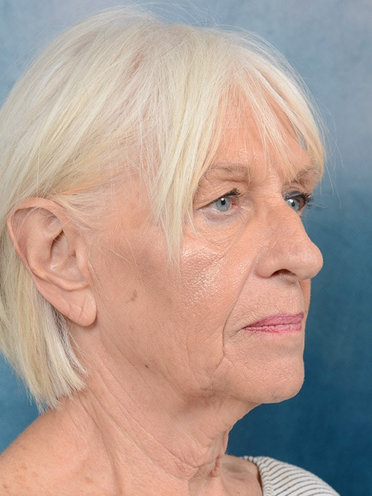 Facelift Gallery - Patient 5834122 - Image 3