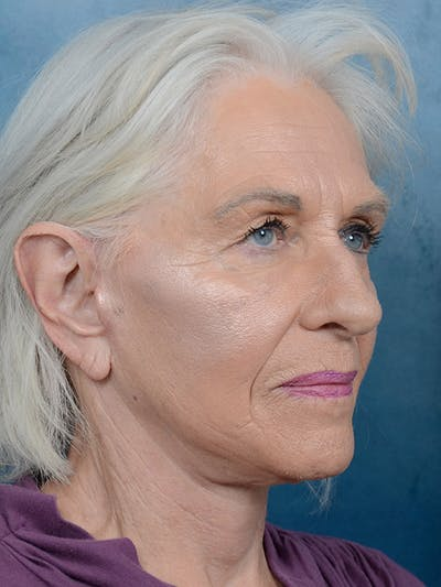 Facelift Gallery - Patient 5834122 - Image 2