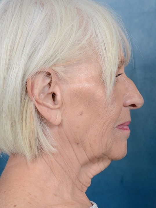 Facelift Gallery - Patient 5834122 - Image 5