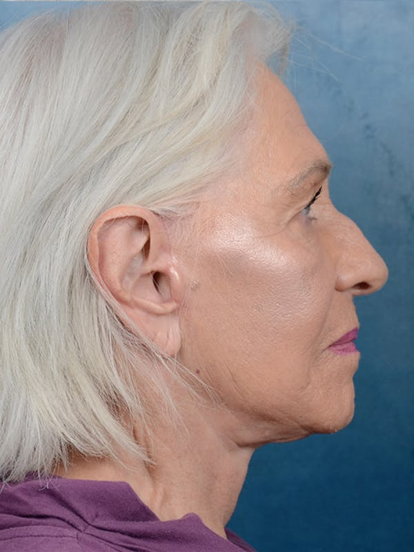 Facelift Gallery - Patient 5834122 - Image 6