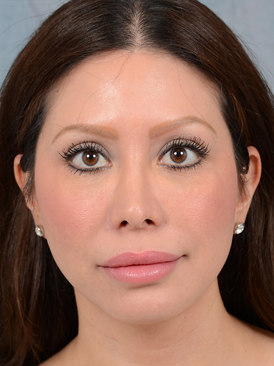 Rhinoplasty Gallery - Patient 5899584 - Image 5