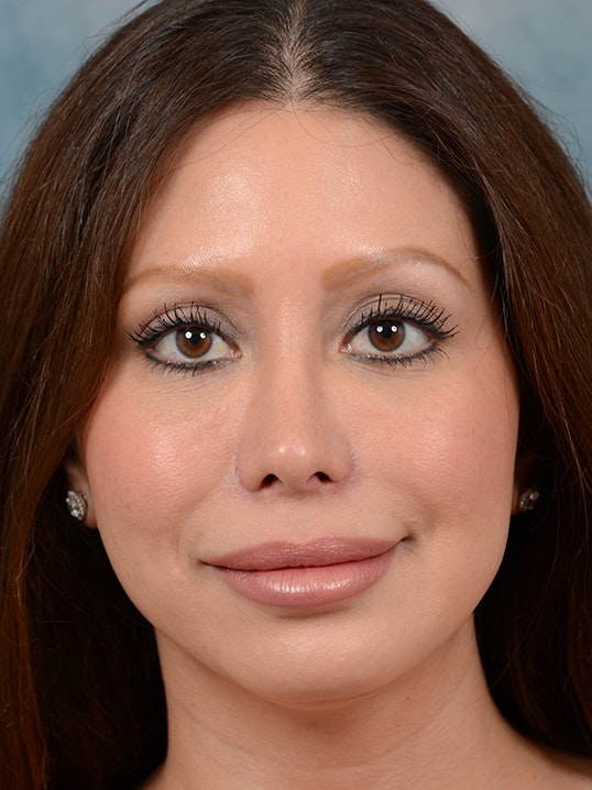 Rhinoplasty Gallery - Patient 5899584 - Image 2