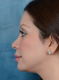 Rhinoplasty Gallery - Patient 5899584 - Image 1