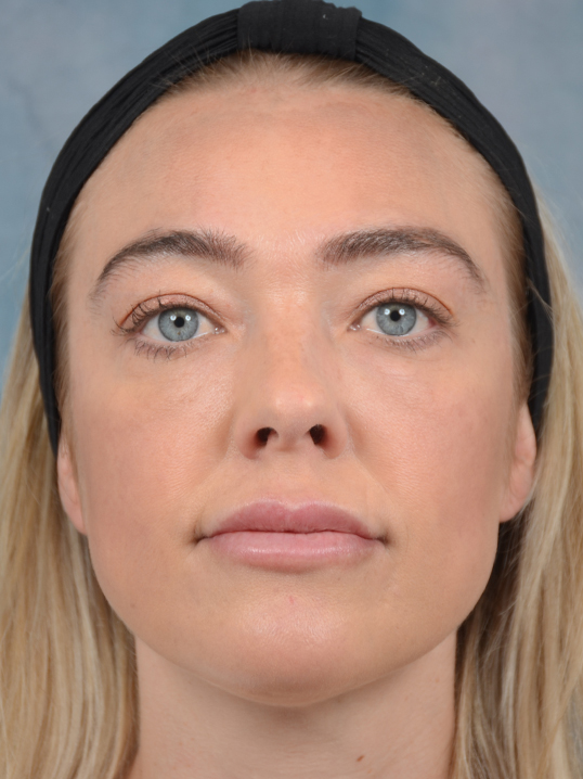 Rhinoplasty Gallery - Patient 5899585 - Image 3
