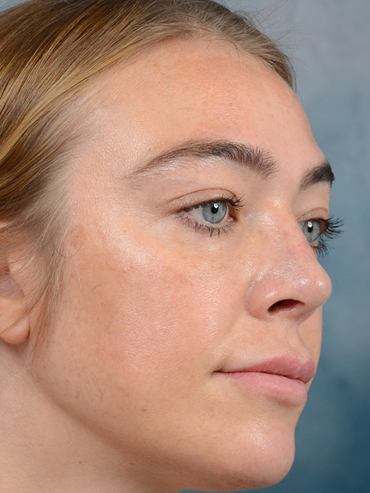 Rhinoplasty Gallery - Patient 5899585 - Image 4
