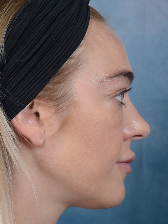 Rhinoplasty Gallery - Patient 5899585 - Image 5