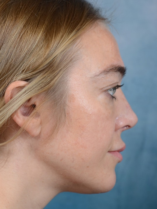 Rhinoplasty Gallery - Patient 5899585 - Image 6