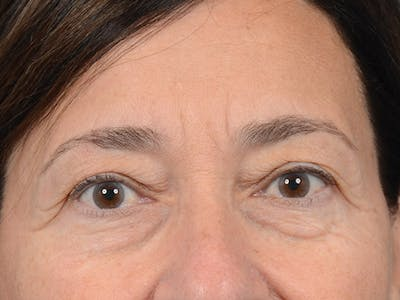 Eyelid Lift Gallery - Patient 5923298 - Image 1