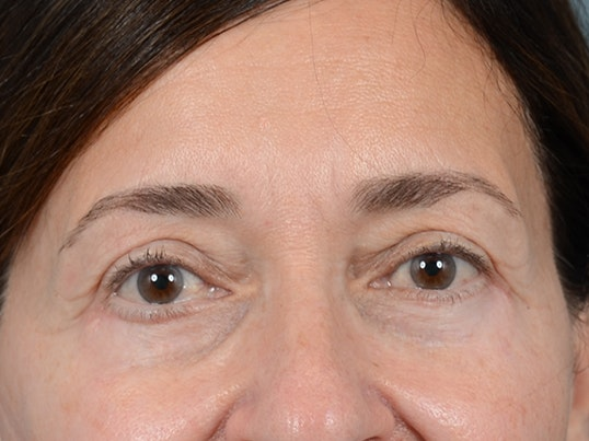 Eyelid Lift Gallery - Patient 5923298 - Image 2