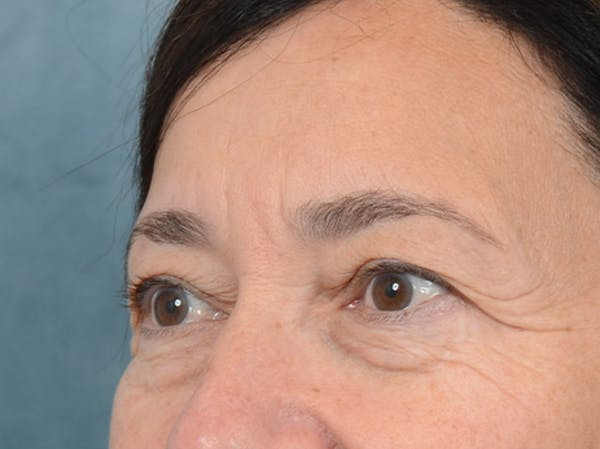 Eyelid Lift Gallery - Patient 5923298 - Image 3