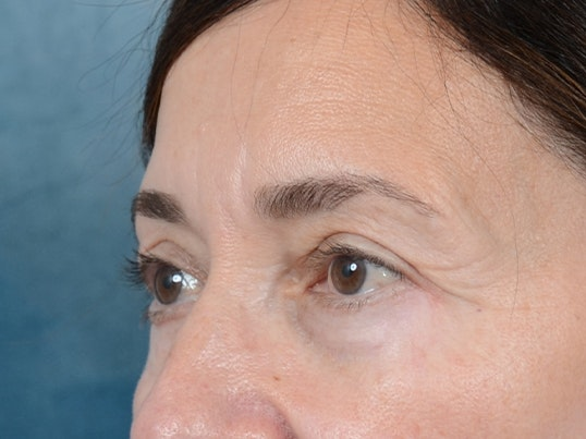 Eyelid Lift Gallery - Patient 5923298 - Image 4