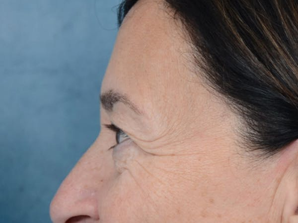 Eyelid Lift Gallery - Patient 5923298 - Image 5