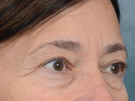 Eyelid Lift Gallery - Patient 5923298 - Image 7