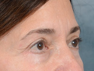 Eyelid Lift Gallery - Patient 5923298 - Image 8