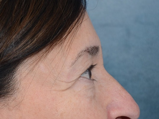 Eyelid Lift Gallery - Patient 5923298 - Image 9
