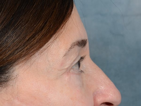 Eyelid Lift Gallery - Patient 5923298 - Image 10