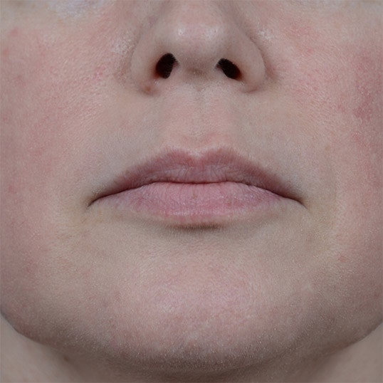 Lip Lift Gallery - Patient 6157746 - Image 1