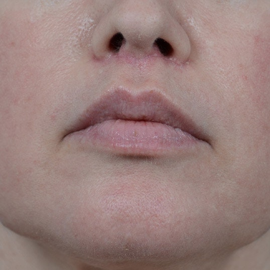 Lip Lift Gallery - Patient 6157746 - Image 2