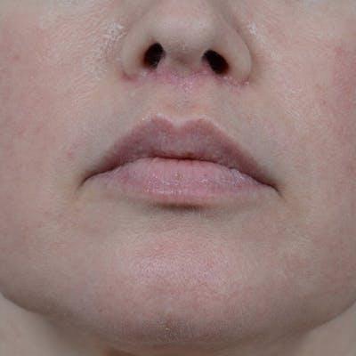 Lip Lift Gallery - Patient 6157746 - Image 2