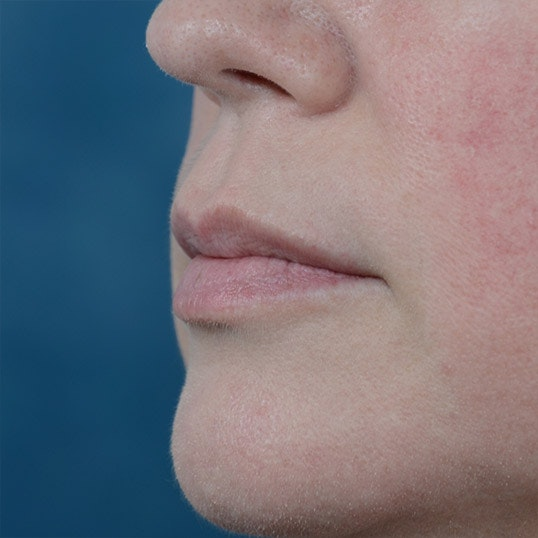 Lip Lift Gallery - Patient 6157746 - Image 3