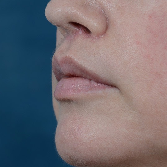 Lip Lift Gallery - Patient 6157746 - Image 4