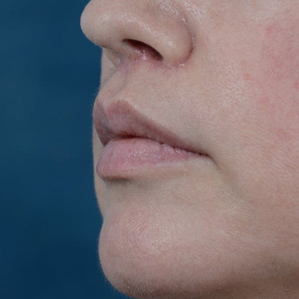 Lip Lift Gallery - Patient 6157746 - Image 4
