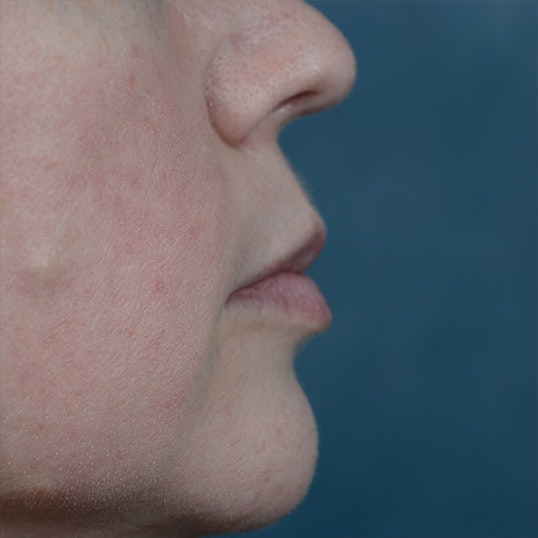 Lip Lift Gallery - Patient 6157746 - Image 5
