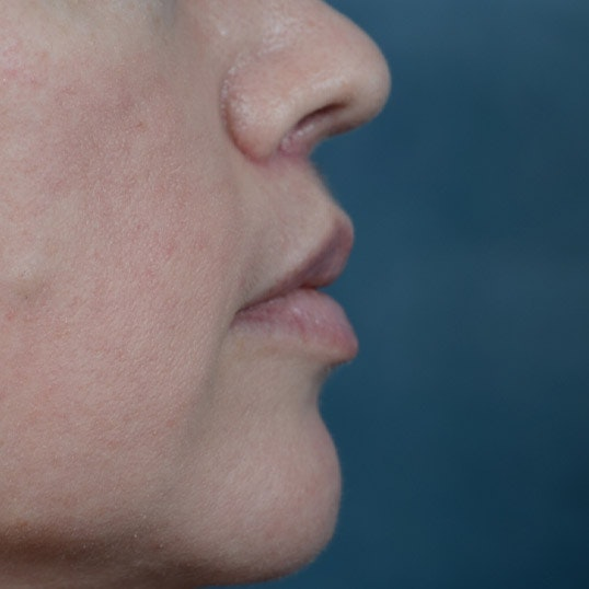 Lip Lift Gallery - Patient 6157746 - Image 6
