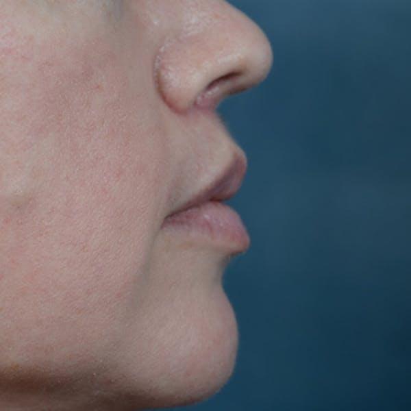 Lip Lift Gallery - Patient 6157746 - Image 6