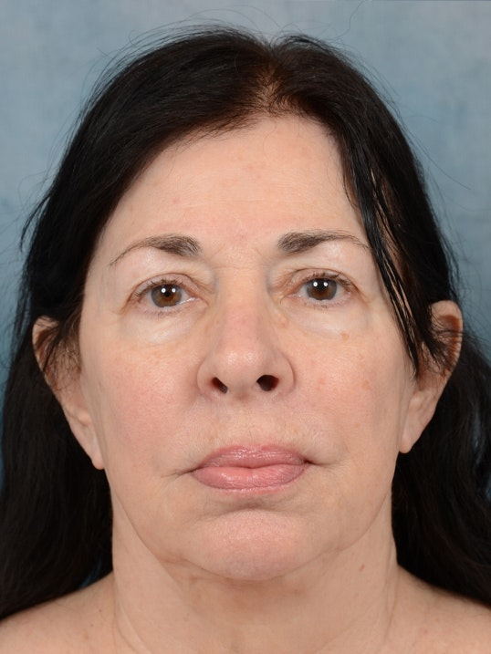 Facelift Gallery - Patient 6158554 - Image 1