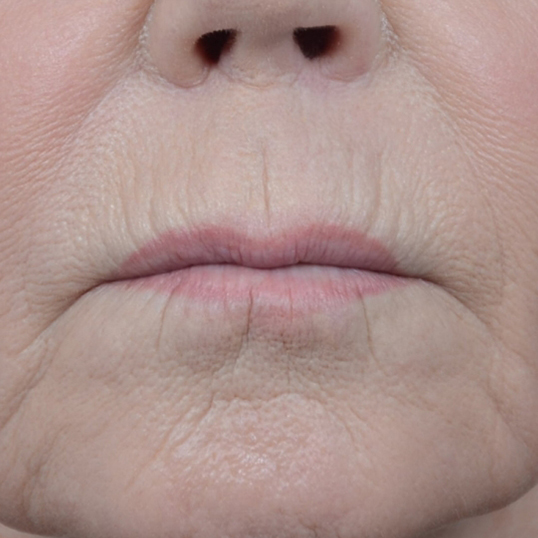 Lip Lift Gallery - Patient 6279257 - Image 2