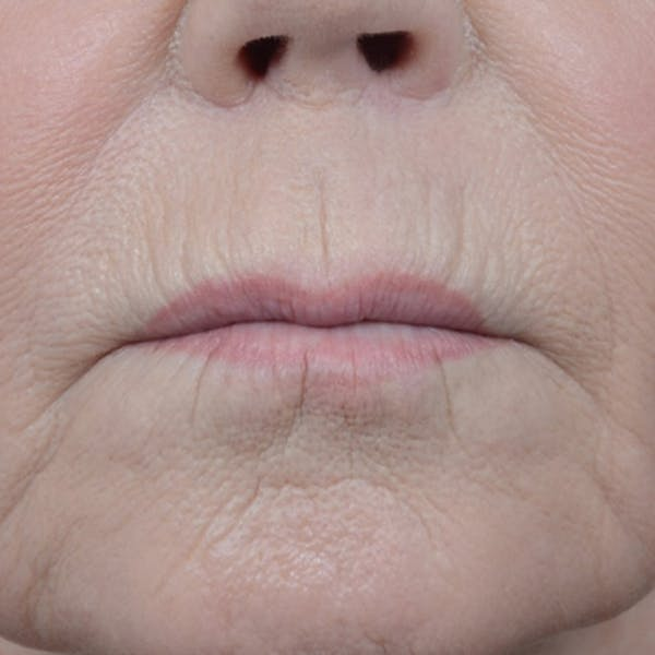 Lip Lift Gallery - Patient 6279257 - Image 1