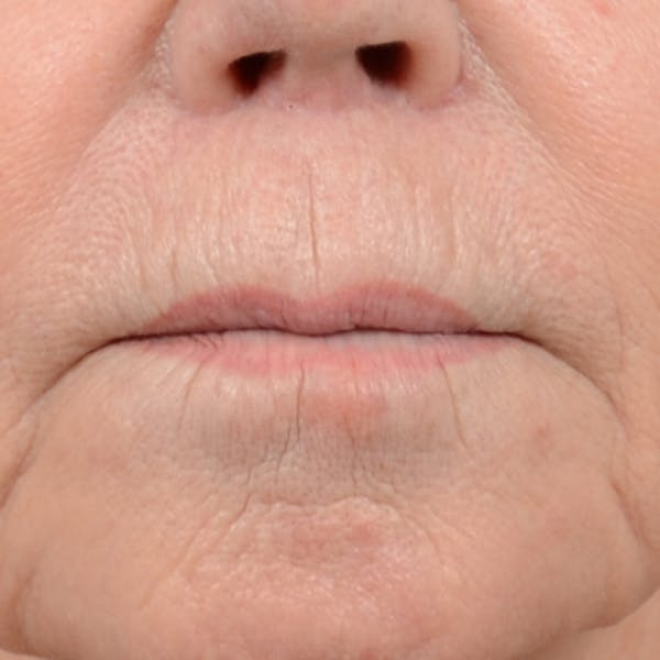 Lip Lift Gallery - Patient 6279257 - Image 2