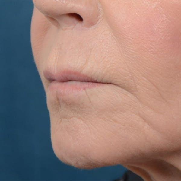 Lip Lift Gallery - Patient 6279257 - Image 3