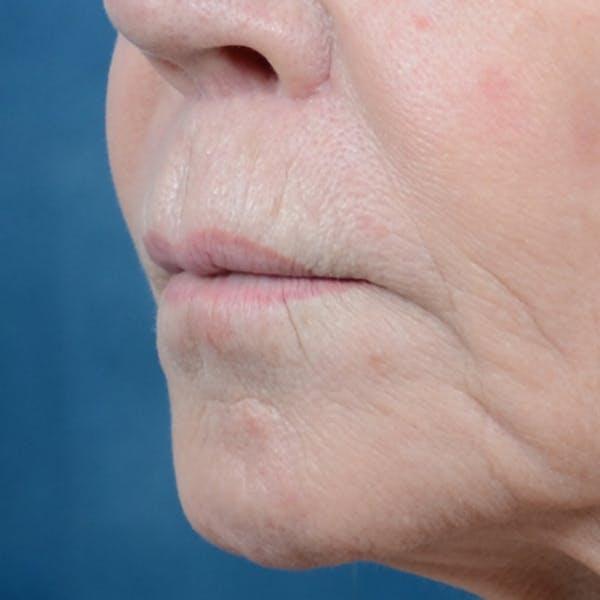 Lip Lift Gallery - Patient 6279257 - Image 4