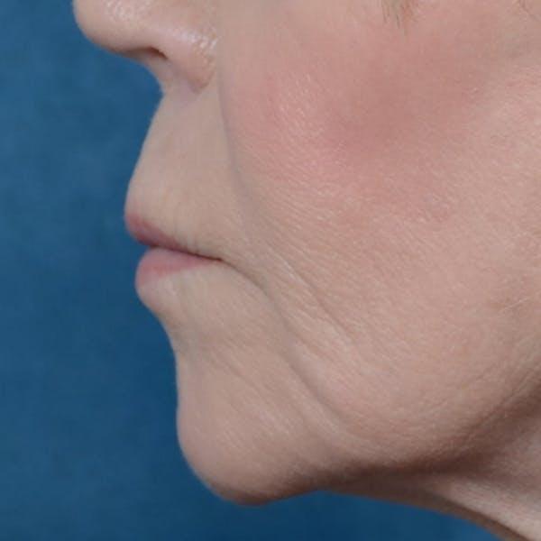 Lip Lift Gallery - Patient 6279257 - Image 5