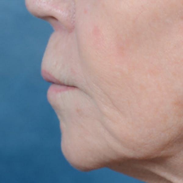 Lip Lift Gallery - Patient 6279257 - Image 6