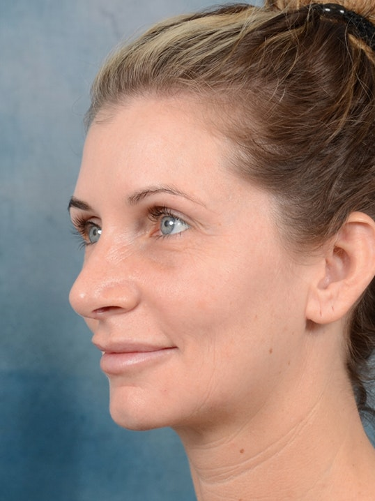 Rhinoplasty Gallery - Patient 6279838 - Image 4