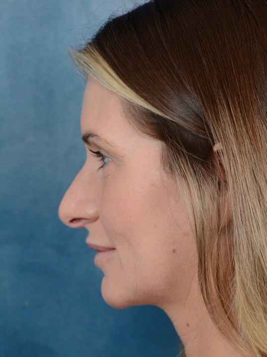 Rhinoplasty Gallery - Patient 6279838 - Image 5