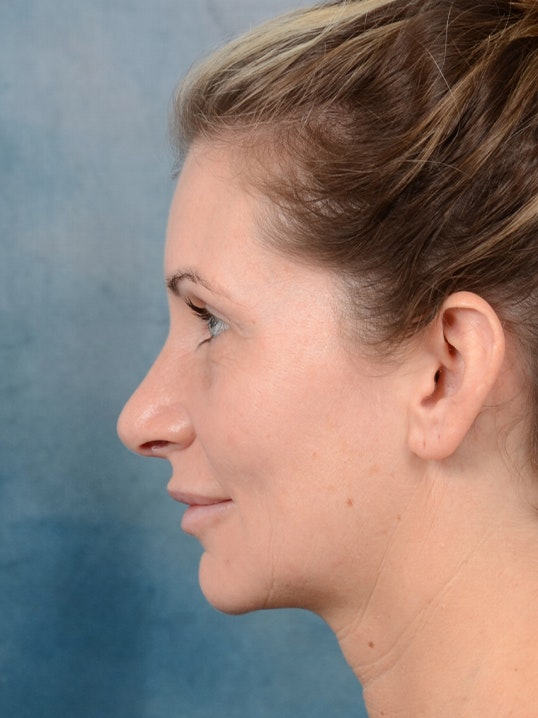 Rhinoplasty Gallery - Patient 6279838 - Image 6