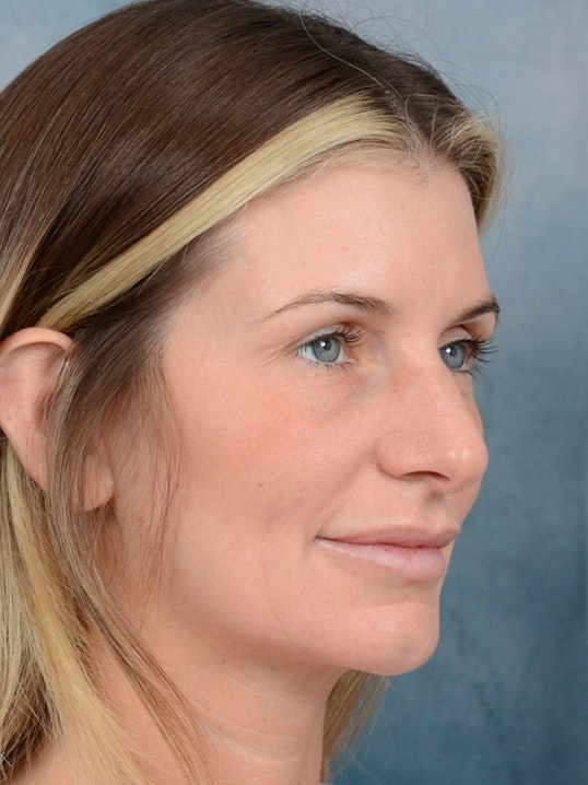 Rhinoplasty Gallery - Patient 6279838 - Image 7