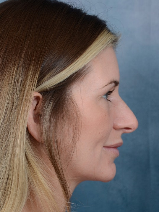 Rhinoplasty Gallery - Patient 6279838 - Image 9