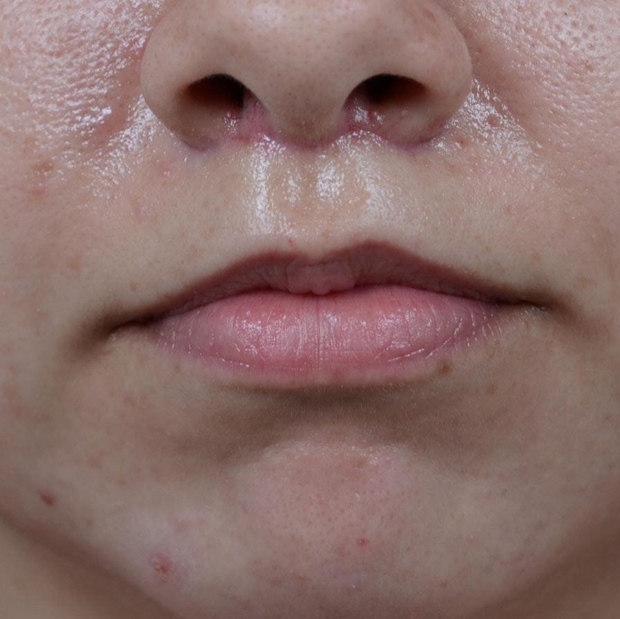 Lip Lift Gallery - Patient 8341617 - Image 2