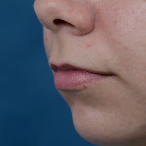 Lip Lift Gallery - Patient 8341617 - Image 3
