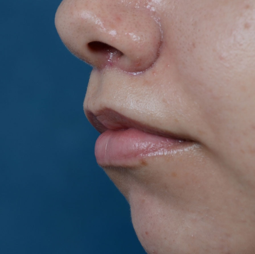 Lip Lift Gallery - Patient 8341617 - Image 4