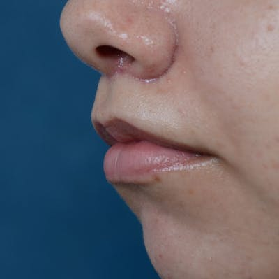 Lip Lift Gallery - Patient 8341617 - Image 4