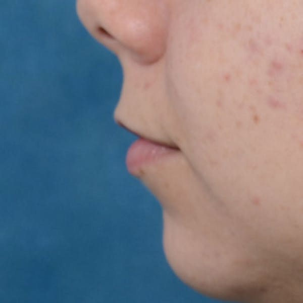 Lip Lift Gallery - Patient 8341617 - Image 5