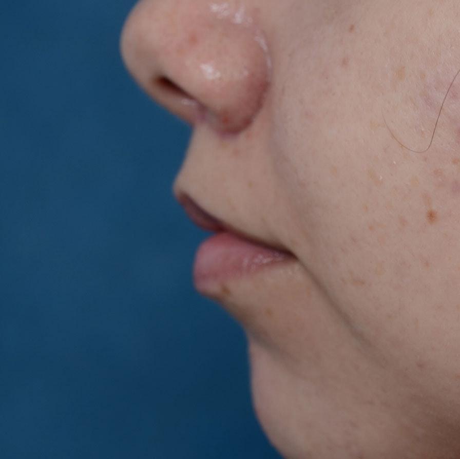 Lip Lift Gallery - Patient 8341617 - Image 6