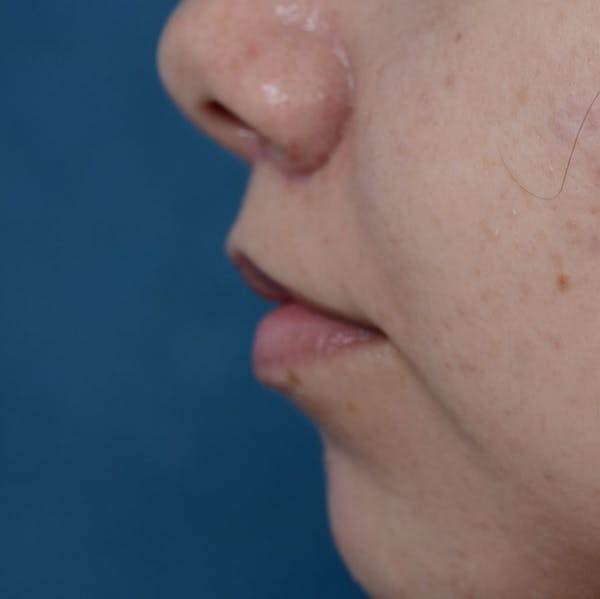 Lip Lift Gallery - Patient 8341617 - Image 6